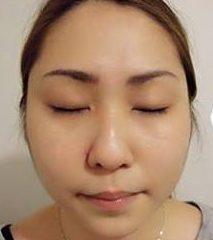 顧客分享 韓式6D逆齡拉提玫瑰線