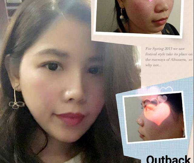 顧客分享 玻尿酸隆鼻