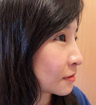 Candy 分享 Cleviel透明質酸隆鼻