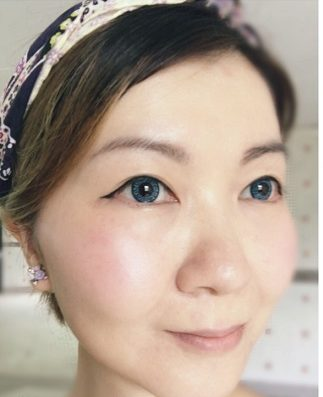 Lilian 分享 第二代童颜针疗程 Derma Veil
