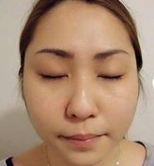 顾客分享 韩式6D逆龄拉提玫瑰线