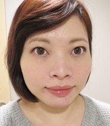 Sandra 分享 我的 V 脸疗程 (PART TWO): RESTYLANE 修饰轮廓