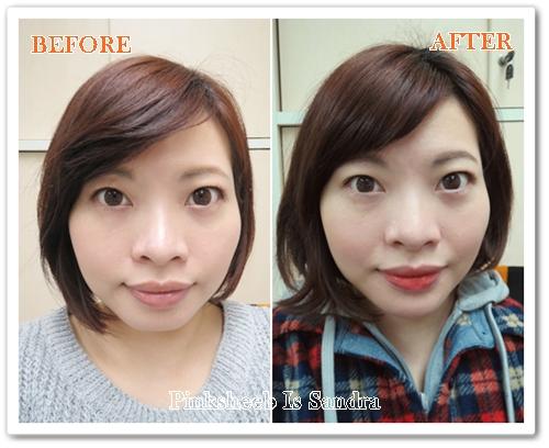 """Sandra 分享 – 我的 V 脸疗程 (PART TWO): """"RESTYLANE 修饰腮缐"""""""