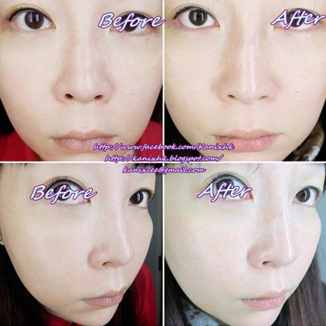 KL分享 韩式 5D Hiko 鼻子美型拉提法